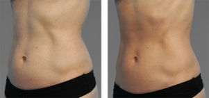 CoolTone Toned Abs Transformation Photos courtesy of Amir Moradi, MD. Individual results may vary.