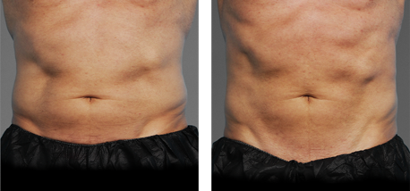 CoolTone Toned Abs Transformation 2