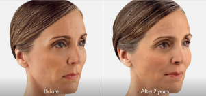 JUVÉDERM VOLBELLA® XC before and after