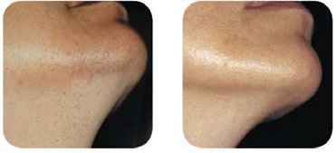 LightSheer-laser hair removal chin before and after - Courtesy of Campos V., M.D.