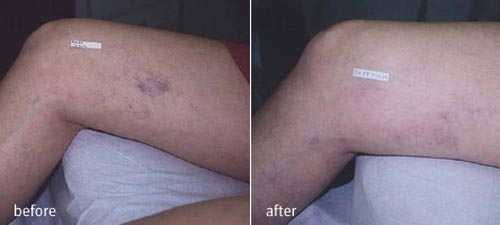 Spider Vein Reduction - Before and After