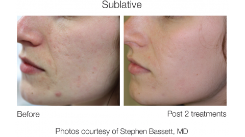 The Ultimate Non-Ablative Fractional Solution