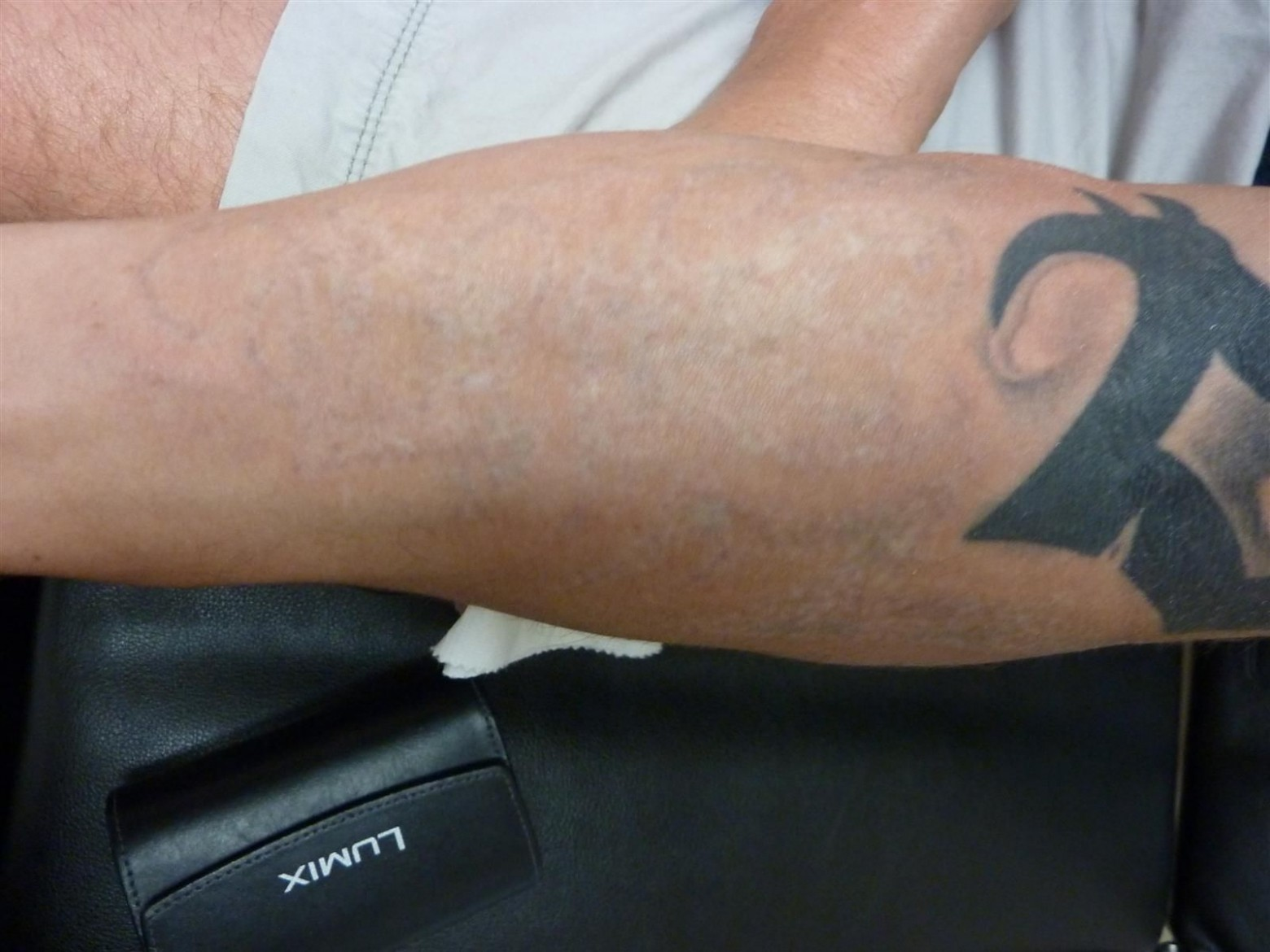 tattoo removal after eshaan laser and skincare medical spa