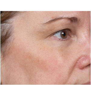 After Clear + Brilliant® Laser treatment
