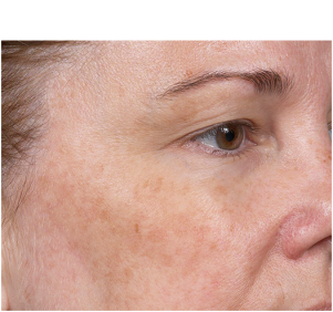 Before Clear + Brilliant® Laser treatment