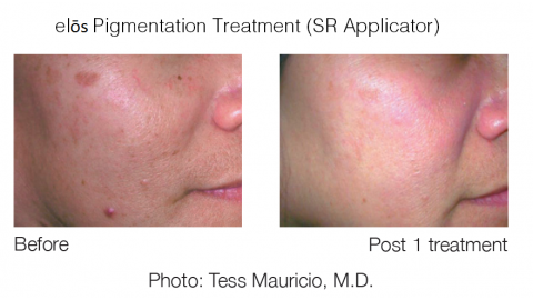 Skin Rejuvenation - SR Applicator